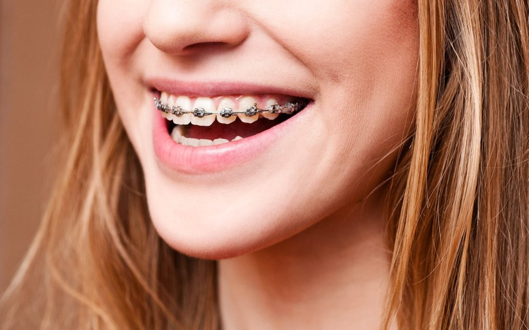 Les appareils dentaires fixes